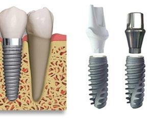 Tìm hiểu phương pháp trồng răng implant an toàn, hiệu quả