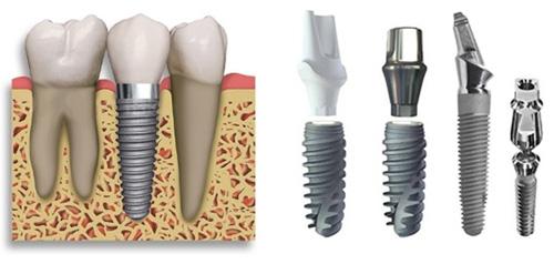 cay-ghep-rang-implant-gia-bao-nhieu-1