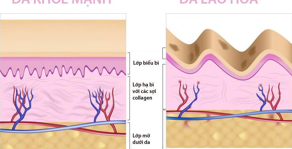 Collagen loại nào tốt? Cách sử dụng như thế nào đạt hiệu quả
