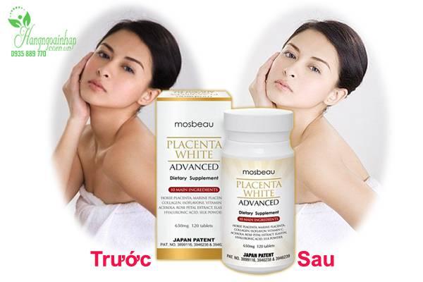 vien-uong-trang-da-&-tri-nam-mosbeau-placenta-white-advanced-cua-nhat