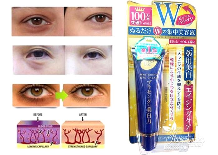 kem-duong-mat-meishoku-placenta-medicated-whitening-eye-cream-30g-cua-nhat-ban-2