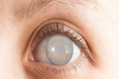 Tác dụng của lutein và zeaxanthin đối với thị lực-2