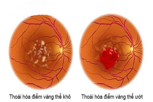 Tác dụng của lutein và zeaxanthin đối với thị lực-3
