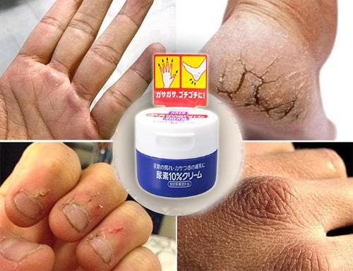 Kem dưỡng da chân của Nhật Shiseido công dụng gì?-3